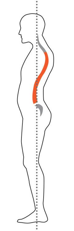 bad-posture-postural